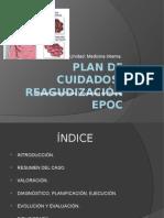 Presentación EPOC