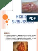 HERIDA QUIRURGICA