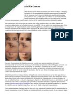 Radiofrecuencia Facial En Coruna