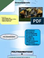 politraumatismo.pptx