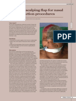 Lee Seng Khoo & Francesco Mazzarone- The Converse Scalping Flap for Nasal Reconstruction Procedures