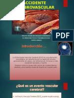 Accidente Cerebrovascular-expo Yaqui