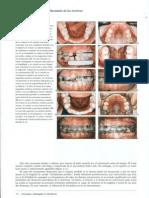 Páginas desdevander linde- estragias en ortodoncia.pdf