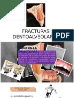Fracturas Dentoalveolares- Parte Karen