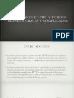 Sesión IPTBc