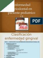 Enfermedad Periodontal en Paciente Pediatrico
