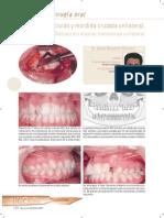 Articulo Maxillaris Distracción Maxilar Transversal