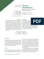 Fibroma Ameloblastico