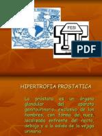 HIPERTROFIA PROSTATICA 1