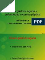 Ulcera Gastrica Aguda y Enfermedad Ulcerosa Peptica