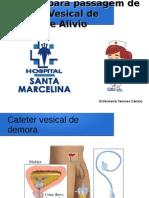 Cateter Vesical de Demora e Alivio