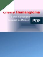Aging skin hemangioma