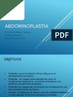 Abdominoplastía CARLOS  MATOS