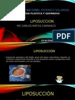 Liposuccion CARLOS MATOS