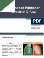 Enfermedad Intersticial Pulmonar Difusa