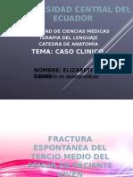 Caso Clinico fractura de femur