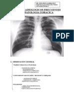 signos radiologicos frecuentes