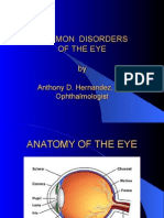 Presentation on Disorders of the Eye