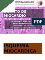 Infarto de Miocardio 2015
