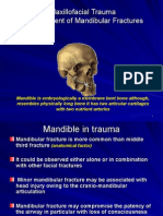 Management of Mandibular fractures.ppt