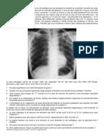 Dossier No6 Tuberculose