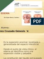 Expo EDEMA de Origen Cardiaco y Renal .