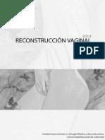 Reconstrucción Vaginal. Ultima Version