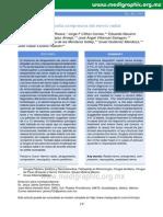 Neuropatia Compresiva Del Nervio Radial