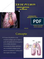 Cancer Pulmonar1 Dilida