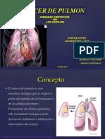 Cancer Pulmonar1 Dilida