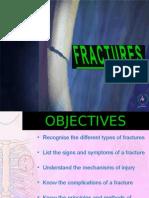 1.3.2 Fractures