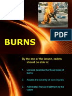 1.3.3 Burns