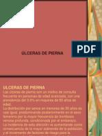 Ulceras Pierna
