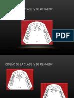 Diseño de La Clase IV de Kennedy