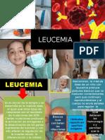 DIAPOS LEUCEMIA