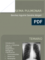 enfisemapulmonar.pptx
