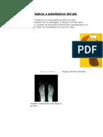 Ángulos Fisiológicos y Patológicos Del Pie