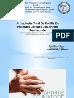 Artroplastia de Rodilla Artritis