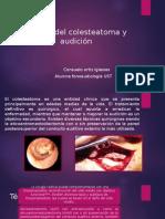 Cirugía Del Colesteatoma y Audición