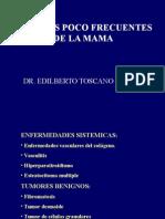 Mama Lesiones