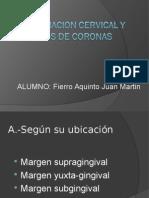 Terminacion Cervical y Tipos de Coronas