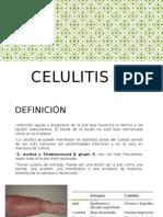 celulitis displasia