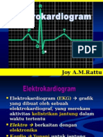 cara mudah baca  EKG