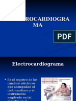 electrocardigrama basico