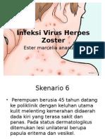 Infeksi Virus Herpes Zoster