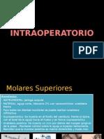 INTRAOPERATORIO molares superiores