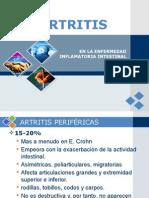 Artritis en La EII