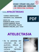 ATELECTASIAS - RADIOLOGIA 100%