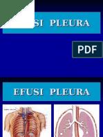 Efusi Pleura Dan Pemasangan WSD Dan Pungsi