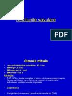 Afectiunile Valvulare- Curs Study Medicine Etc
